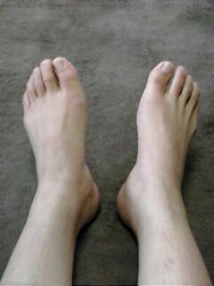 足の長さチェック! ベッドに寝てもらう時、たいていの人は、左右の足の長さが違っています。 ...